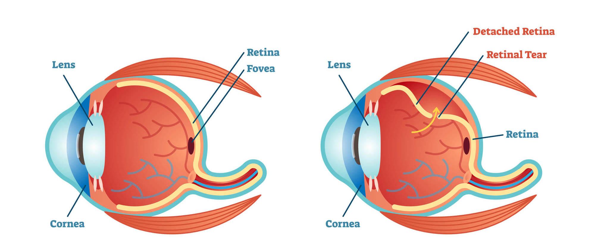 tudo sobre o descolamento de retina