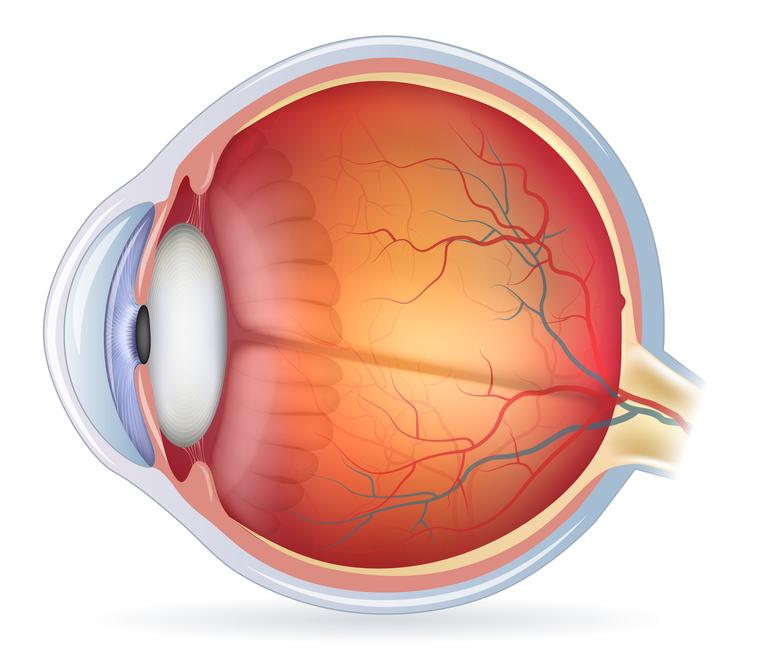 sintomas e tratamento da neurite óptica