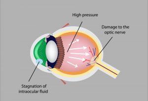 o glaucoma tem cura? tudo o que precisa saber