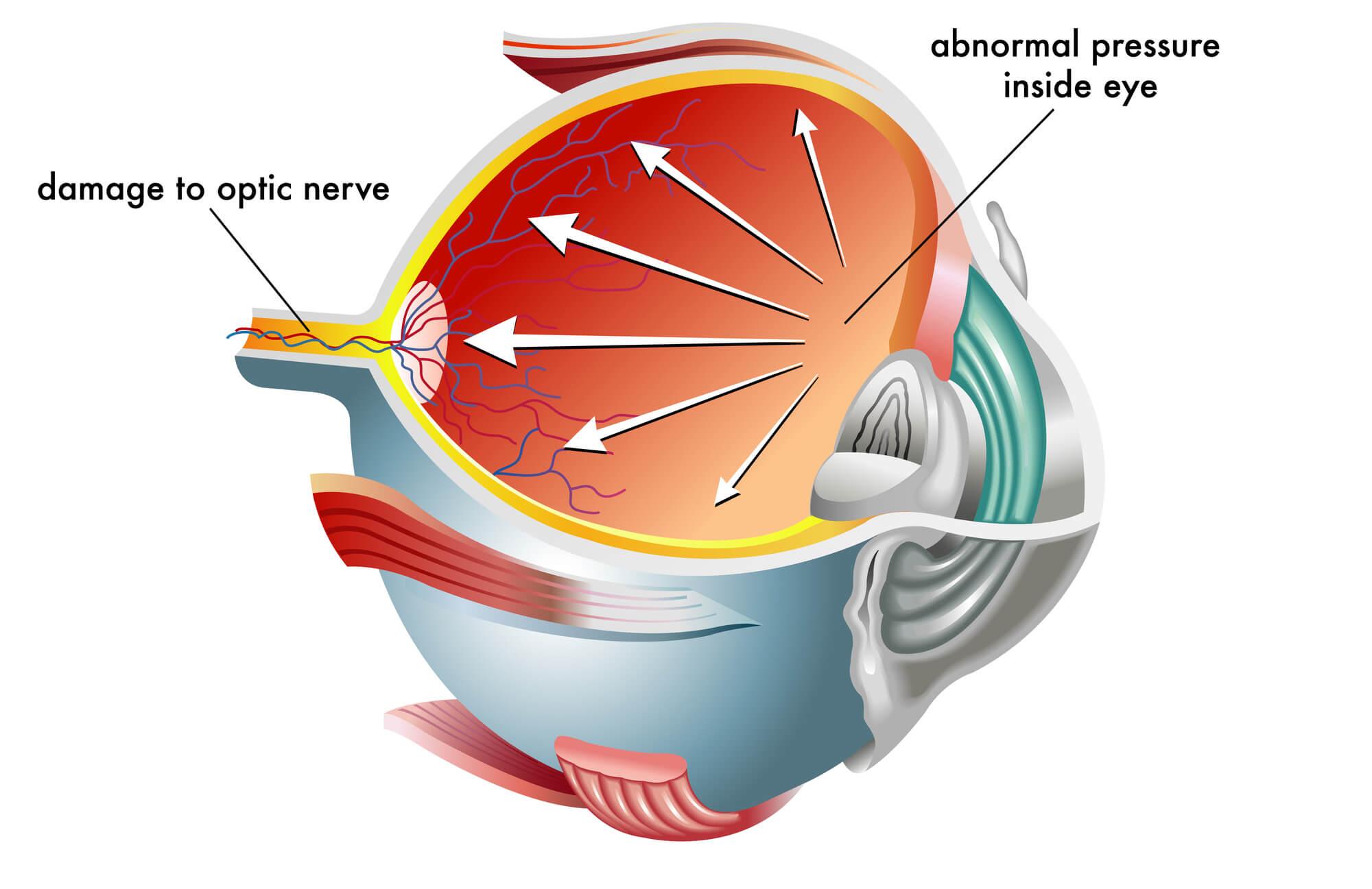 glaucoma o que é