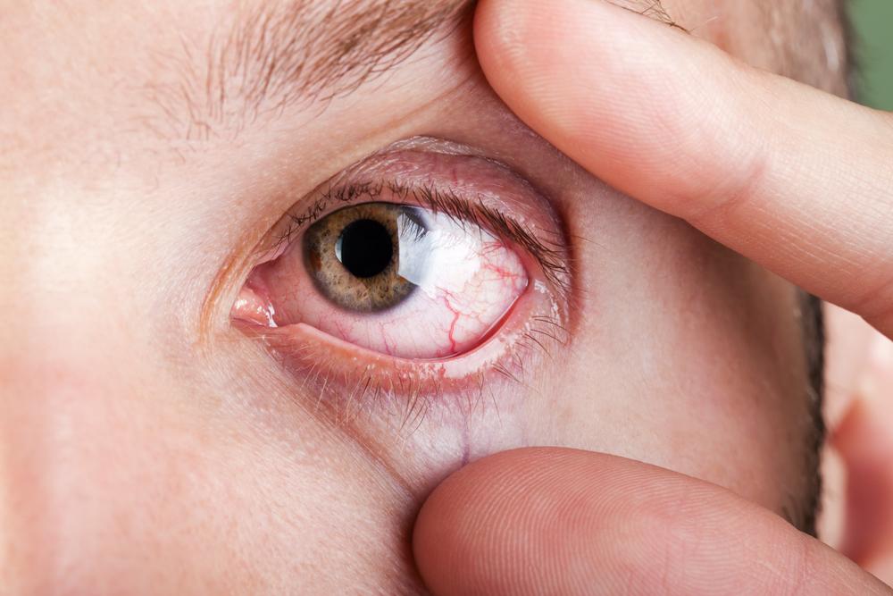 Saiba mais sobre a transmissão, diagnóstico e tratamento da toxoplasmose ocular