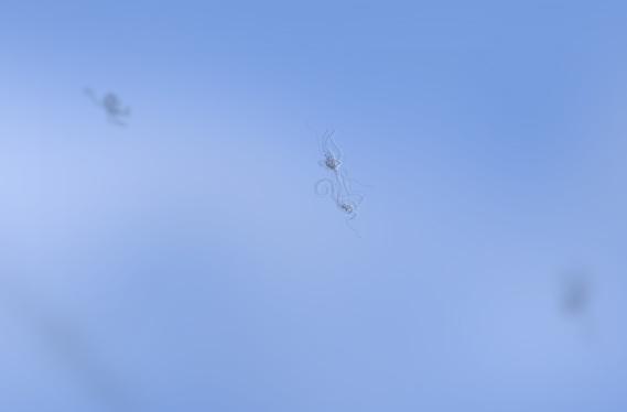 escotomas, moscas volantes podem representar descolamento posterior de vítreo
