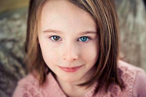 fique por dentro das causas dos olhos de cores diferentes: heterocromia ocular
