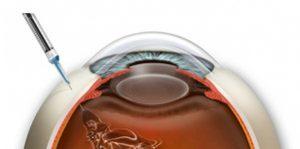 desenho de um olho mostrando realização de injeção intravítrea