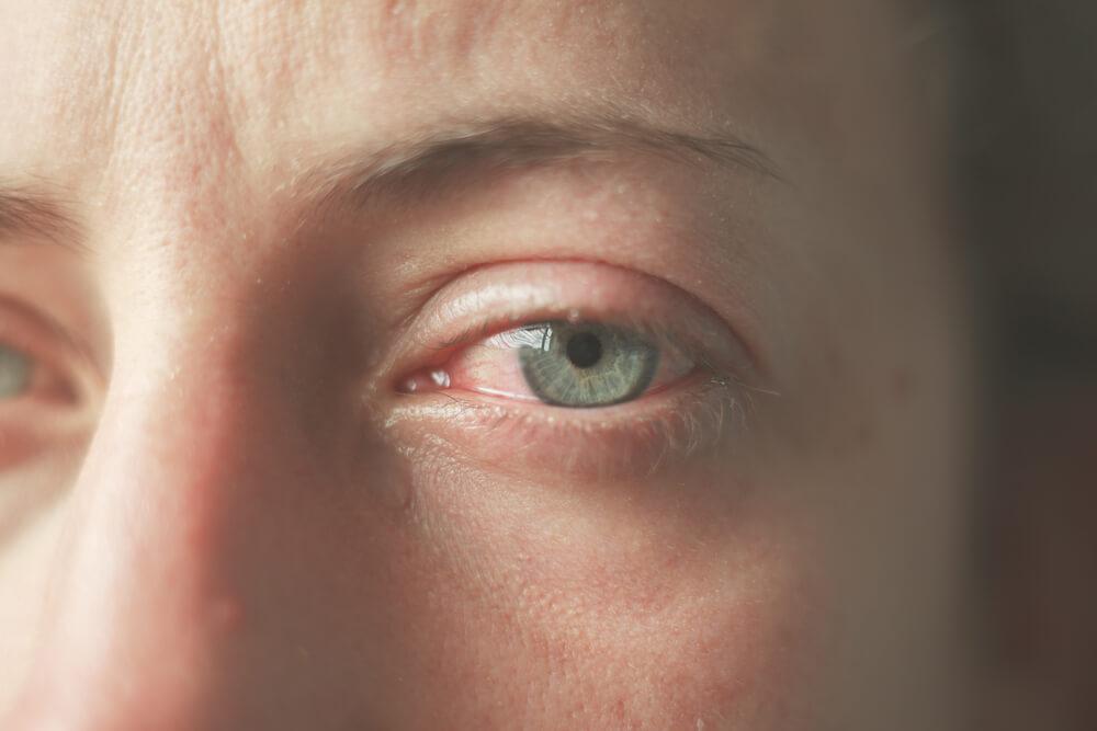 é normal os olhos lacrimejarem?