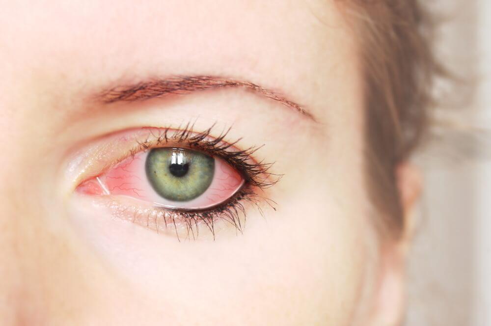 O que causa olhos vermelhos?