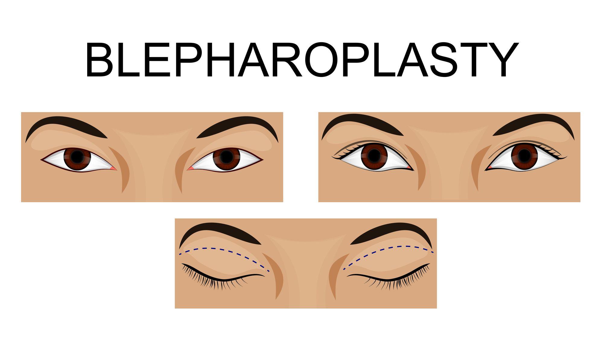 tudo sobre a blefaroplastia