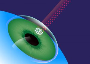 tudo sobre o laser da retina