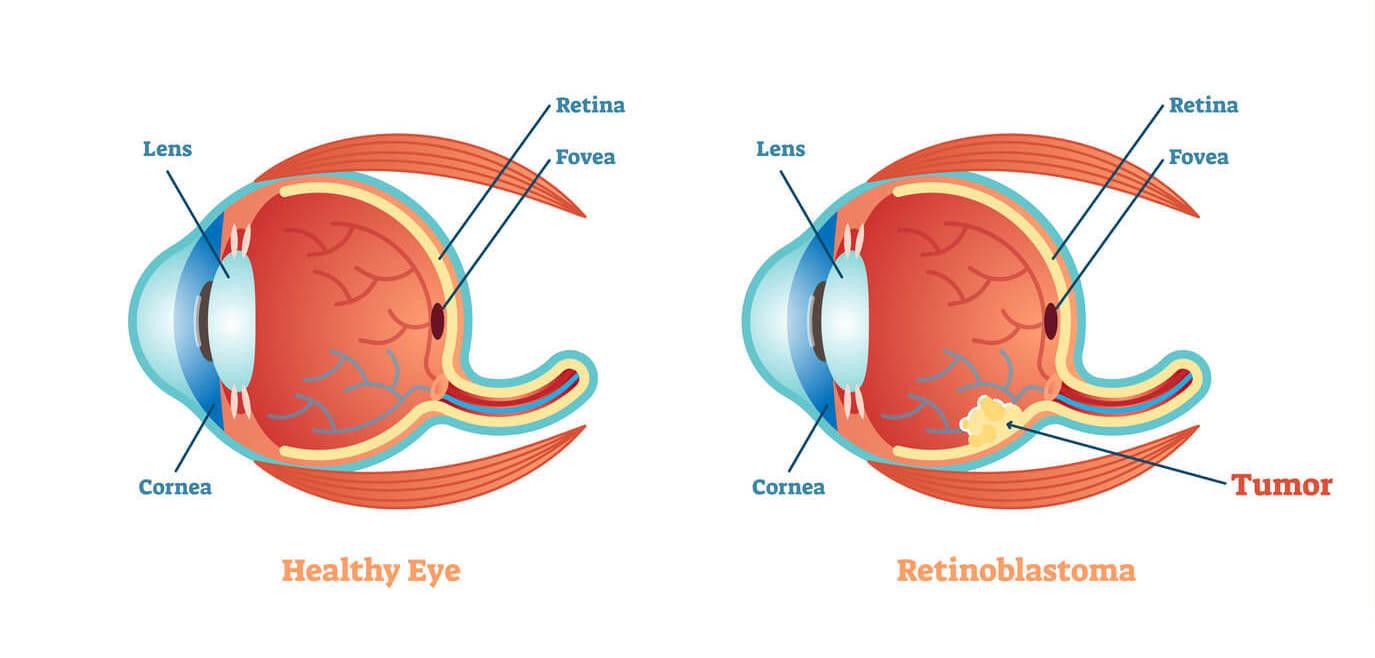 tudo sobre cancer nos olhos