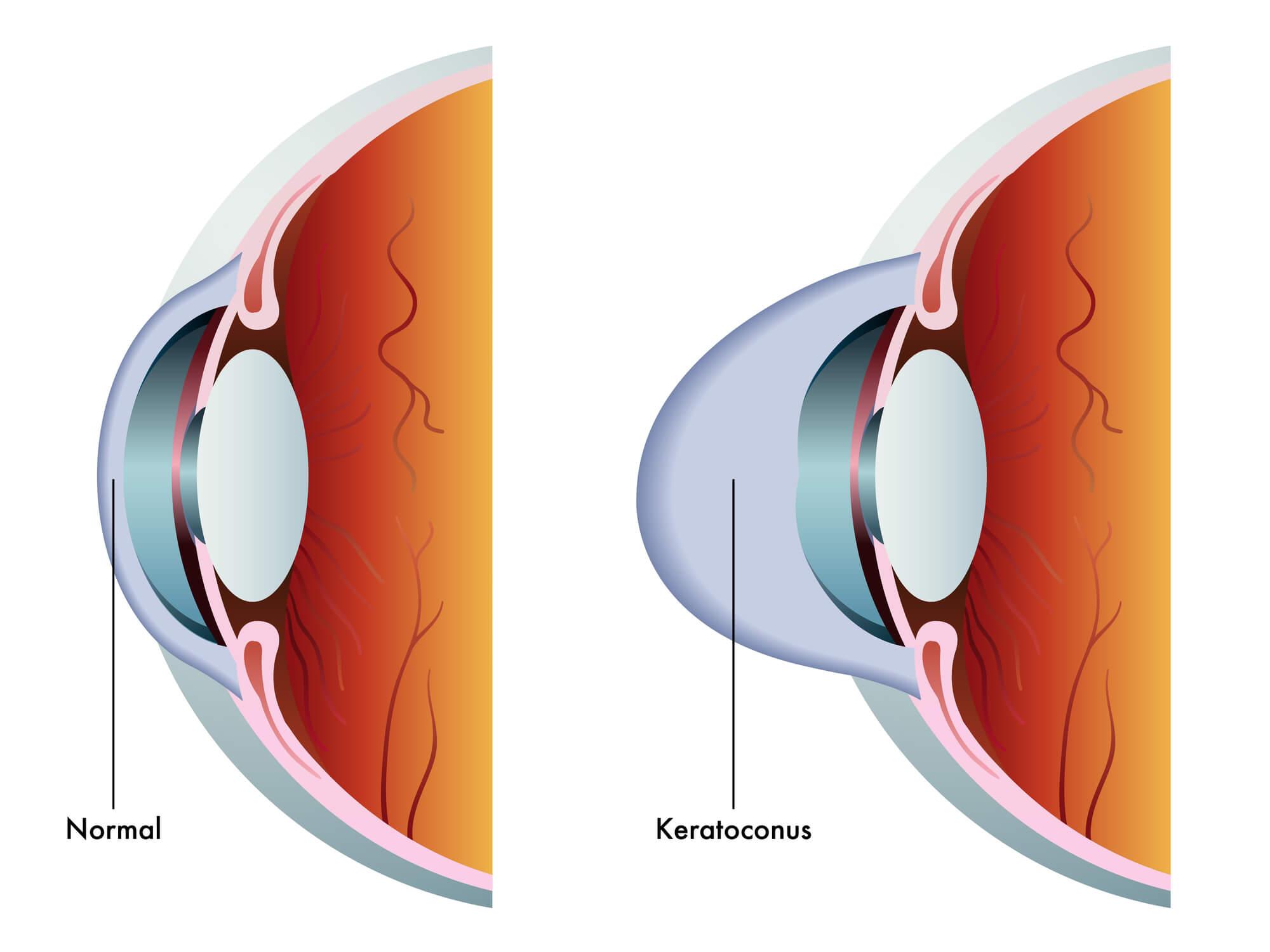 ceratocone causa cegueira