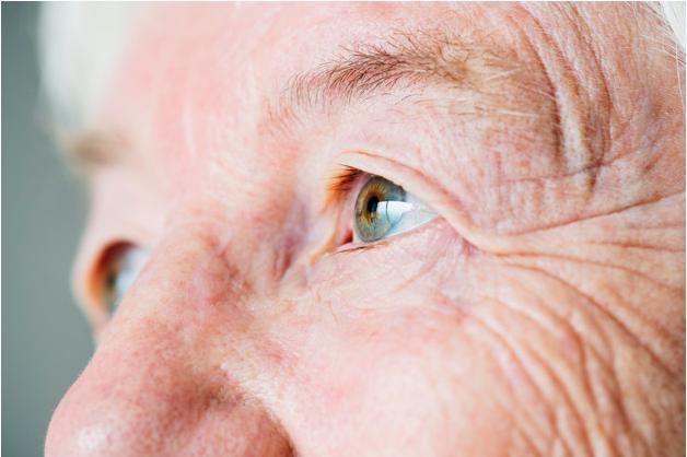 imagem ampliada do rosto de uma mulher idosa