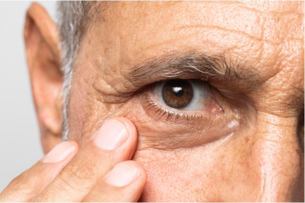 imagem focada em olho esquerdo de homem de idade que leva sua mão ao seu rosto