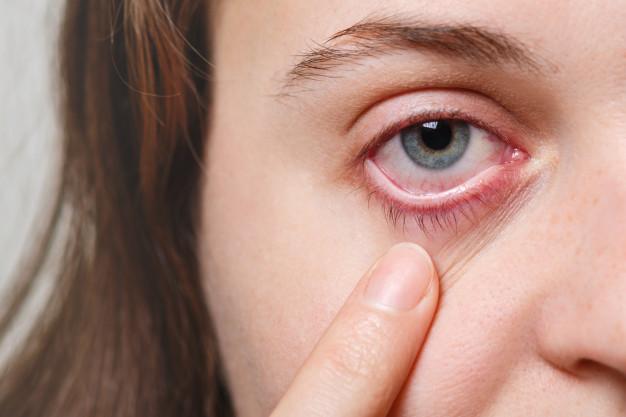 mulher puxando sua pálpebra para baixo evidenciando o olho avermelhado
