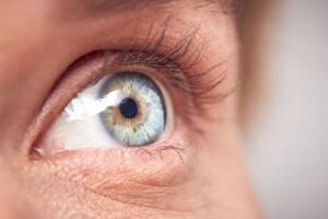 Olho com lente escleral