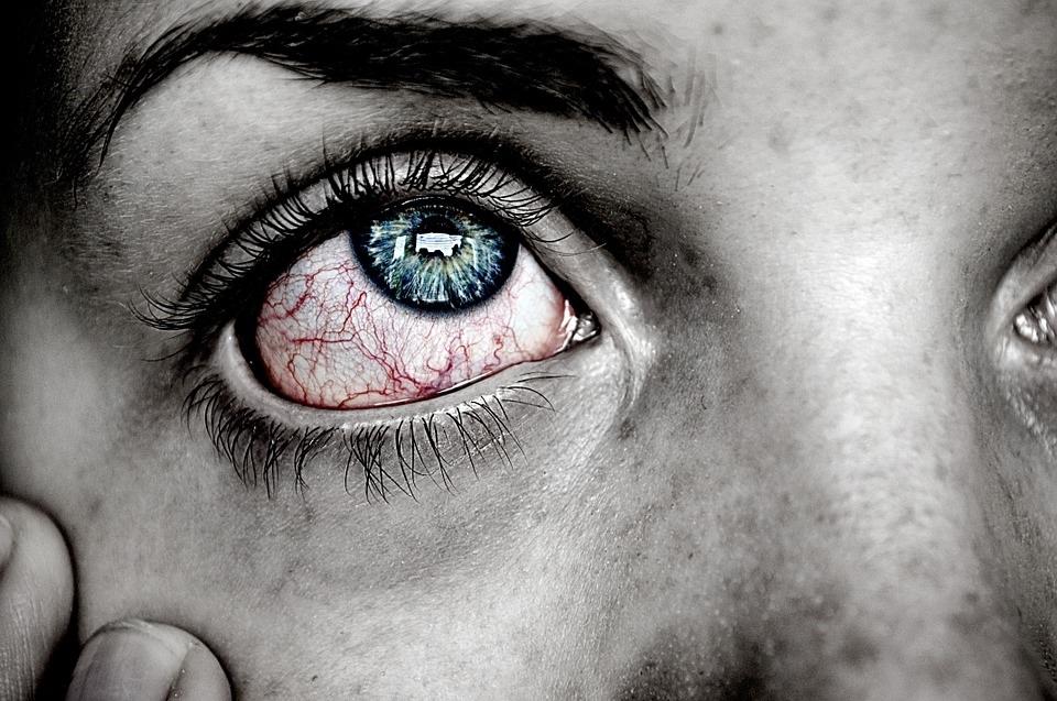 Olhos avermelhados por excesso de Ômega 3