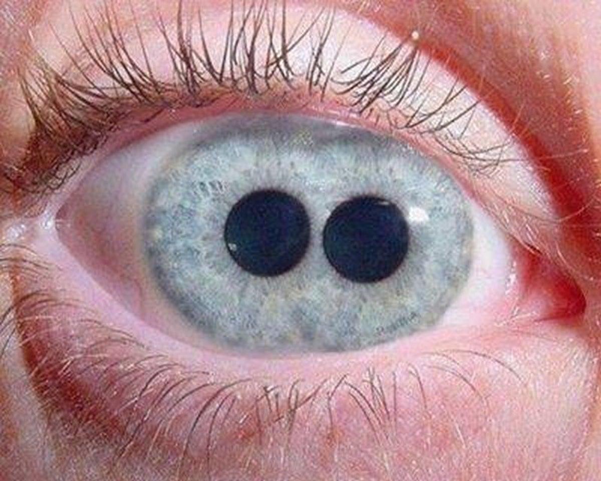 imagem ampliada de olho com íris de cor azul e policoria