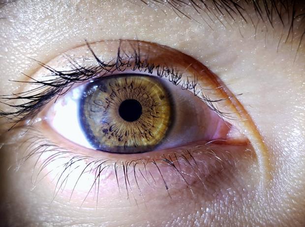 olho aberto de pessoa com a íris cor de  mel