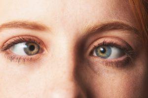 Detalhe de olhos com estrabismo.