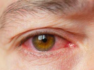 Detalhe de um olho avermelhado